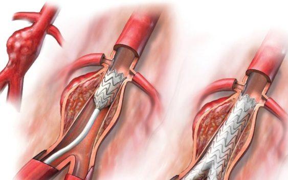 W porę wykryć tętniaka